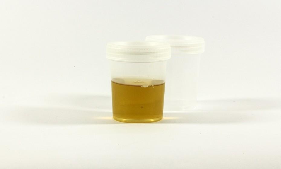 A terapia da urina foi historicamente utilizada pelos gregos e romanos para curar tudo aquilo que os afligia. Foi usada, inclusive, para branquear os dentes. Acredita-se que beber a própria urina rejuvenesce a pessoa. Especula-se que a urina tenha propriedades anticancerígenas e que pode (supostamente) prevenir o cancro e as rugas.