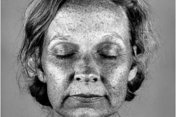 Imitando as fotografias médicas sob uma luz ultravioleta, estas fotografias pretendem mostrar os danos do sol, normalmente invisíveis a olho nu, e ser um lembrete austero de como é crucial o uso do protetor solar. Fotos: Cara Phillips.