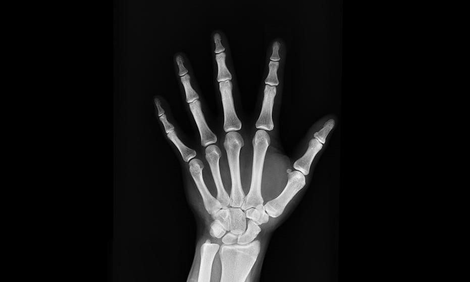 Tratar a osteoporose reforçando a estrutura óssea.