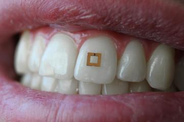 Cientistas desenvolvem sensores dentários que monitorizam o que se come