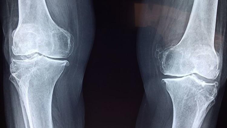 Osteoporose na origem de 40 mil fraturas por ano em Portugal