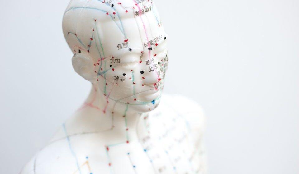 A acupunctura é uma técnica de medicina chinesa que utiliza a inserção de agulhas finas na pela para estimular e desbloquear pontos específicos do corpo e por isso mesmo pode atuar como analgésico natural, diminuindo a dor.