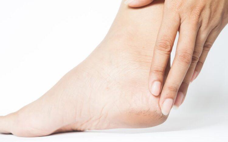 Esporão do calcanhar: fatores de risco e tratamento