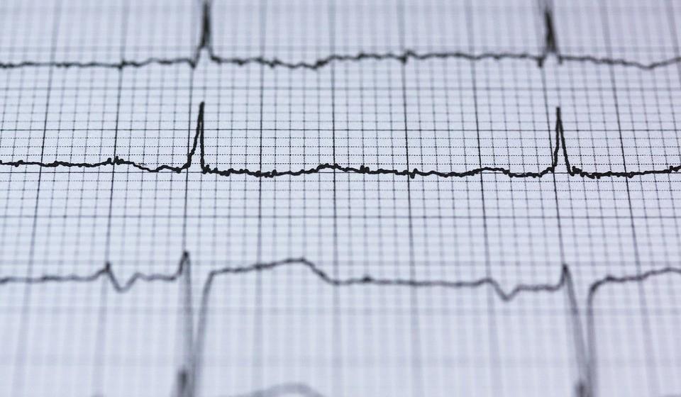 O que é a fibrilação auricular e qual a sua relação com o AVC? A fibrilhação auricular é uma perturbação do ritmo cardíaco (arritmia) que se associa ao risco de acidente vascular cerebral (AVC). Nesta arritmia, o coração perde a capacidade de contração das aurículas. A estagnação de sangue nestas cavidades proporciona a formação de coágulos (trombos) que poderão deslocar-se e migrar para a circulação cerebral e provocar um AVC. O AVC continua a ser a principal causa de morte e incapacidade em Portugal e a fibrilhação auricular é responsável por cerca de um terço dos casos.