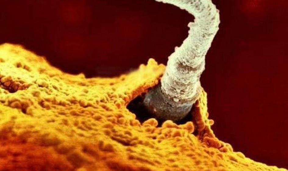 A entrada do espermatozóide no óvulo.