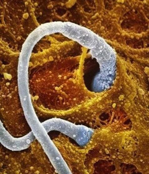 Dois espermatozóides a competir para entrar no mesmo óvulo.